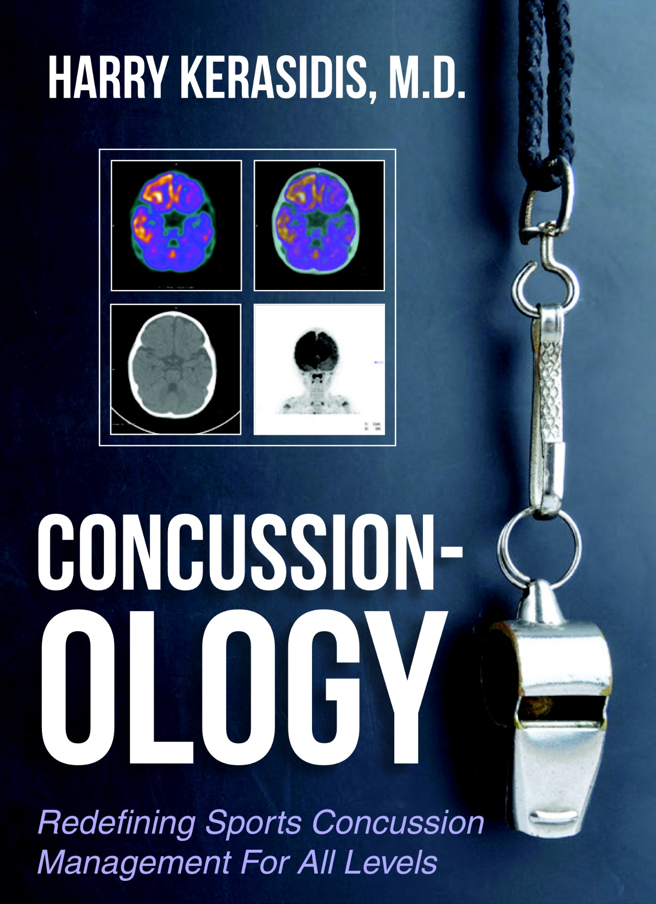 Concussion-ology-cover copy