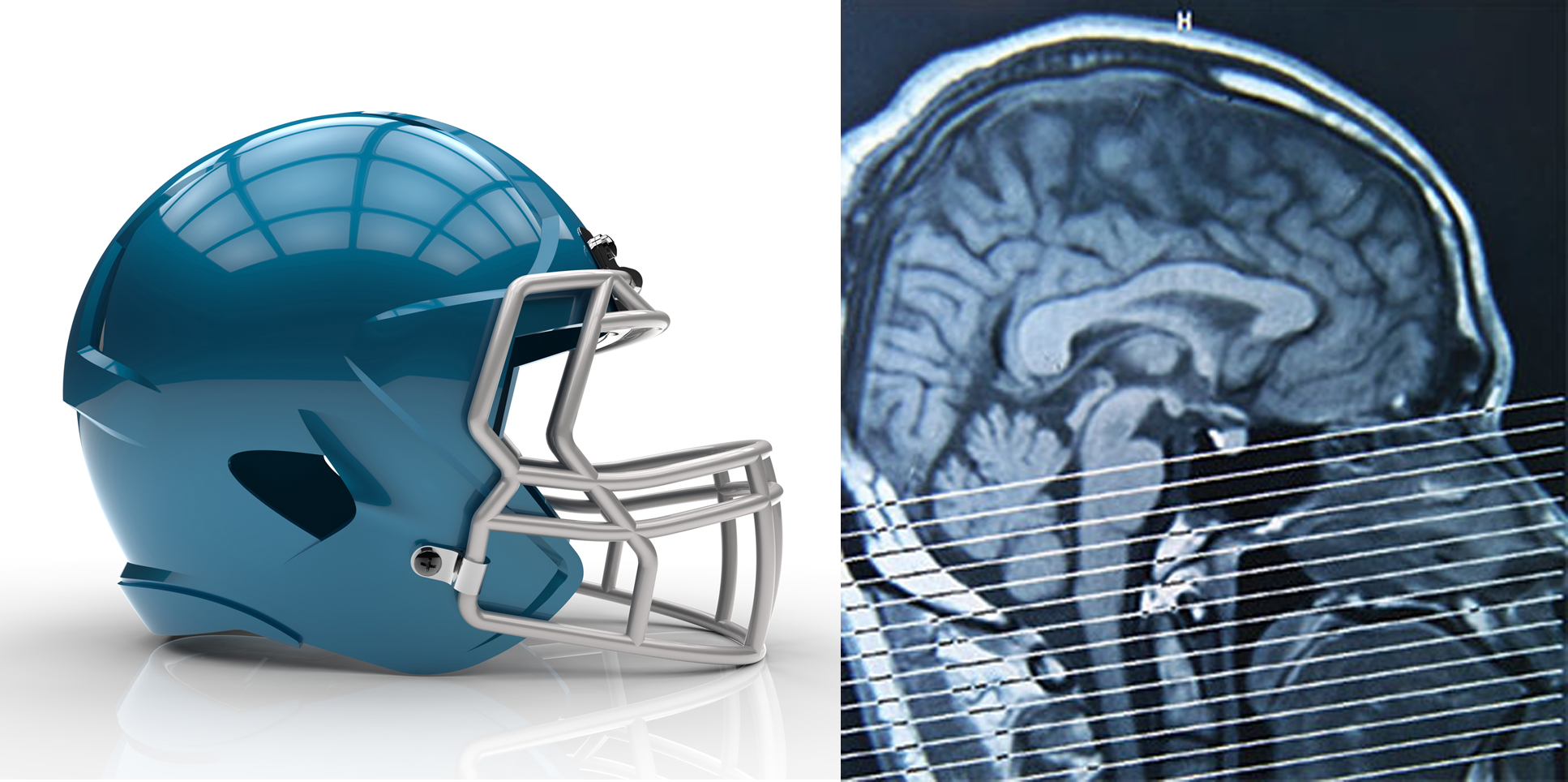 Debunking 10 Common Concussion Myths